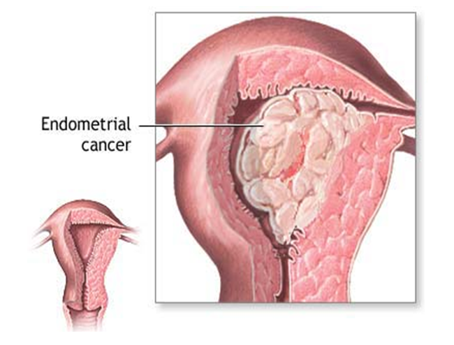 Endometrial Hyperplasia and/or Cancer